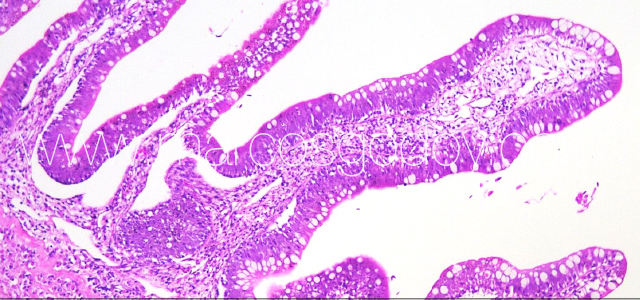 Gut edema histopathology III