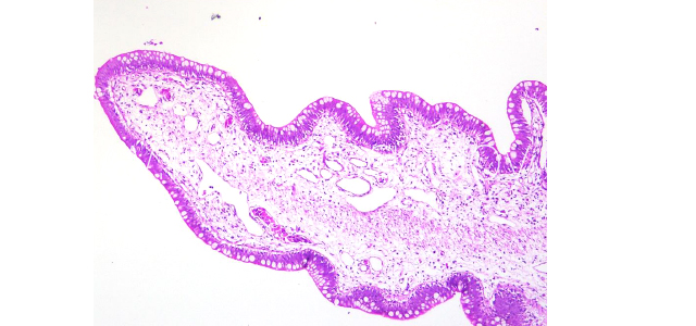 Gut edema histopathology V