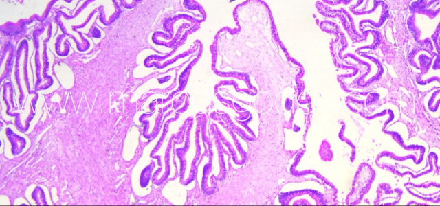 Gut edema histopathology VI