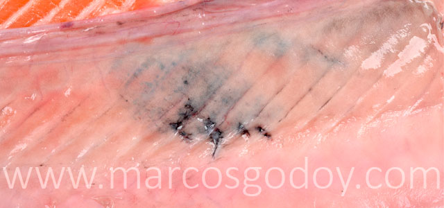 Melanosis Gross IX